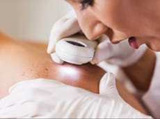 Rates of skin cancer type in UK men jumps by nearly half in decade, research finds