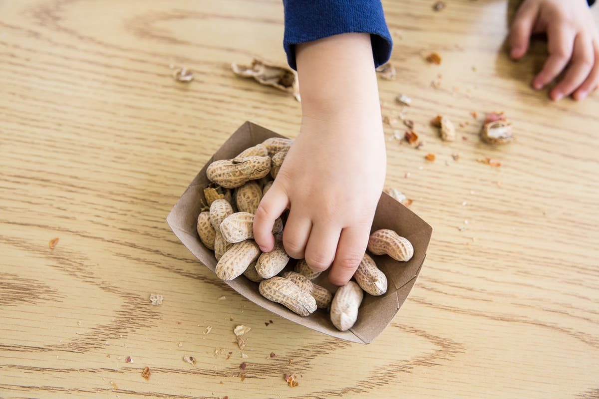 Here are some things you may not know about food allergies