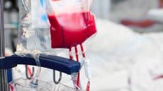 Kritiese oproep dat swart mense bloed skenk namate 'aantal sekelselpasiënte toeneem'