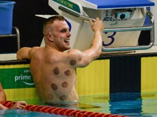 Tóquio 2020: What are the dark circles on the swimmers' backs?
