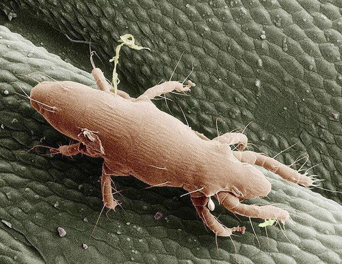 Washington DC is suffering an itch mite infestation