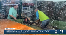 Alligator theme park handler shows off injuries after witnesses pulled her from enclosure after attack