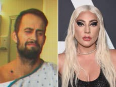 Lady Gaga defended by man who got shot while protecting her dogs in Hollywood abduction