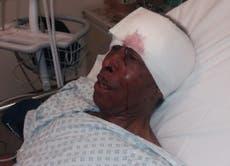 Police watchdog probes arrest of Black driver, 70, left in hospital