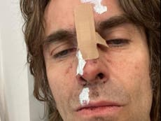 Liam Gallagher suffers injuries after 'falling out of helicopter'