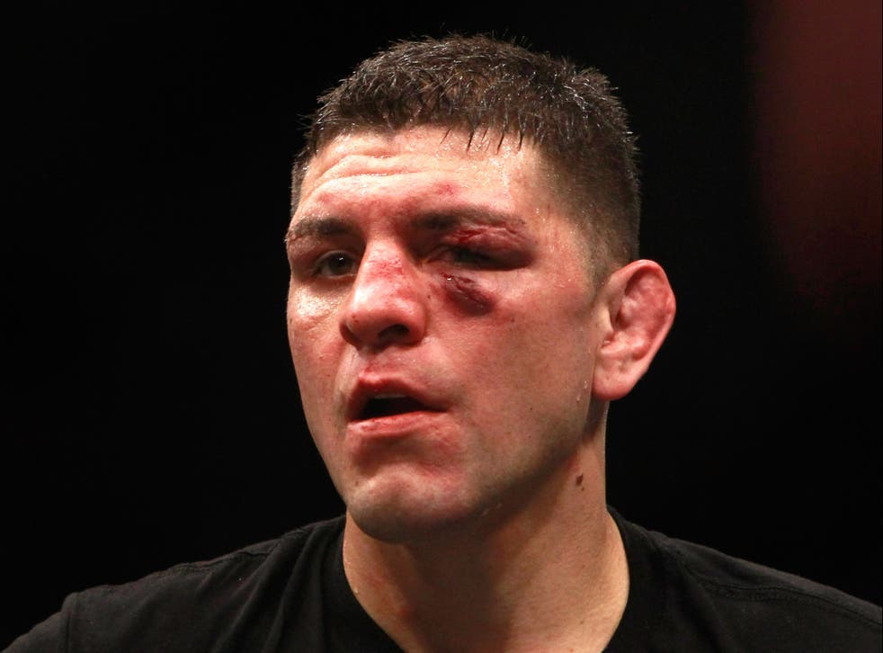 <p>Nick Diaz after his last UFC bout, in 2015</p>