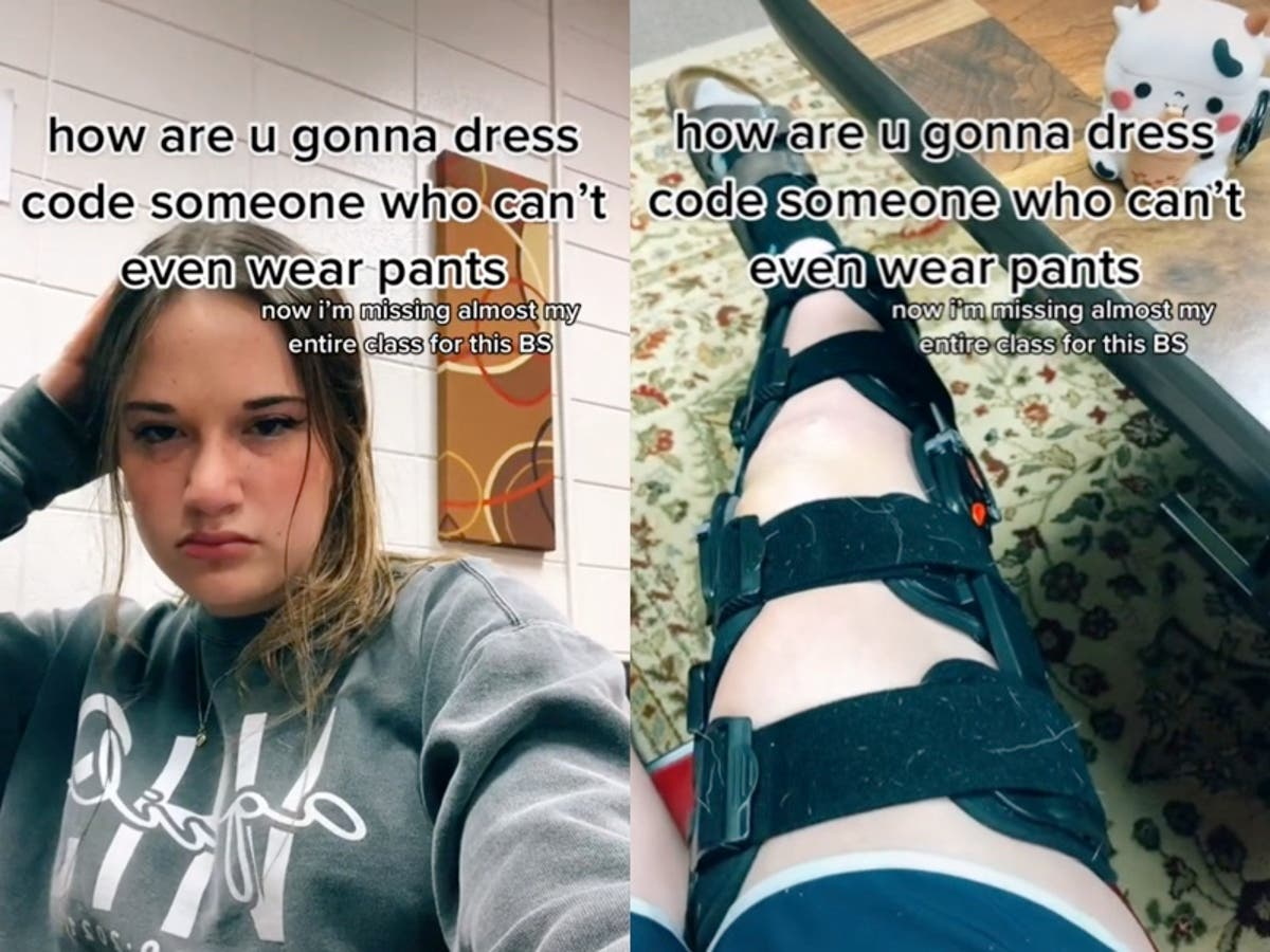 Student in leg brace calls out school dress code over shorts violation
