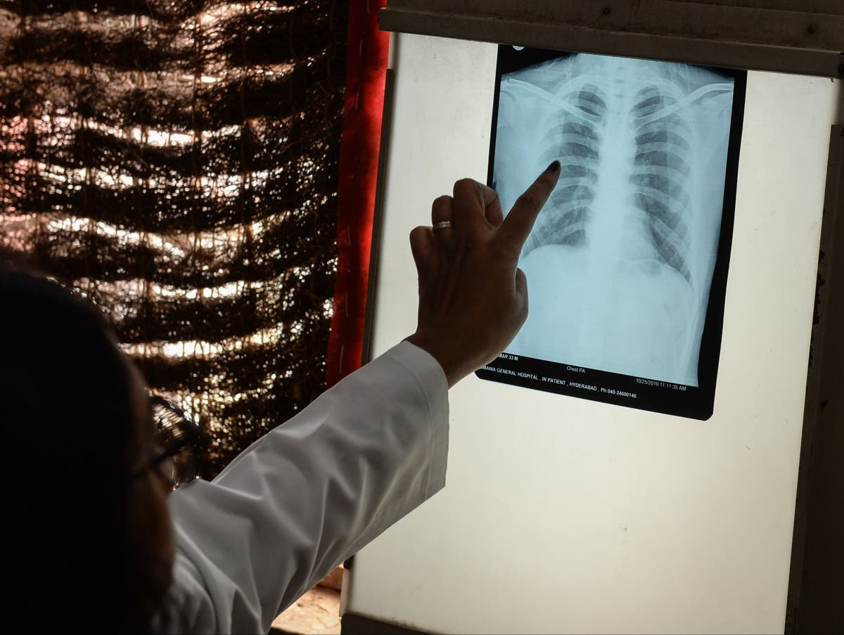 Tuberculosis deaths rise for first time in a decade due to impact of Covid pandemic