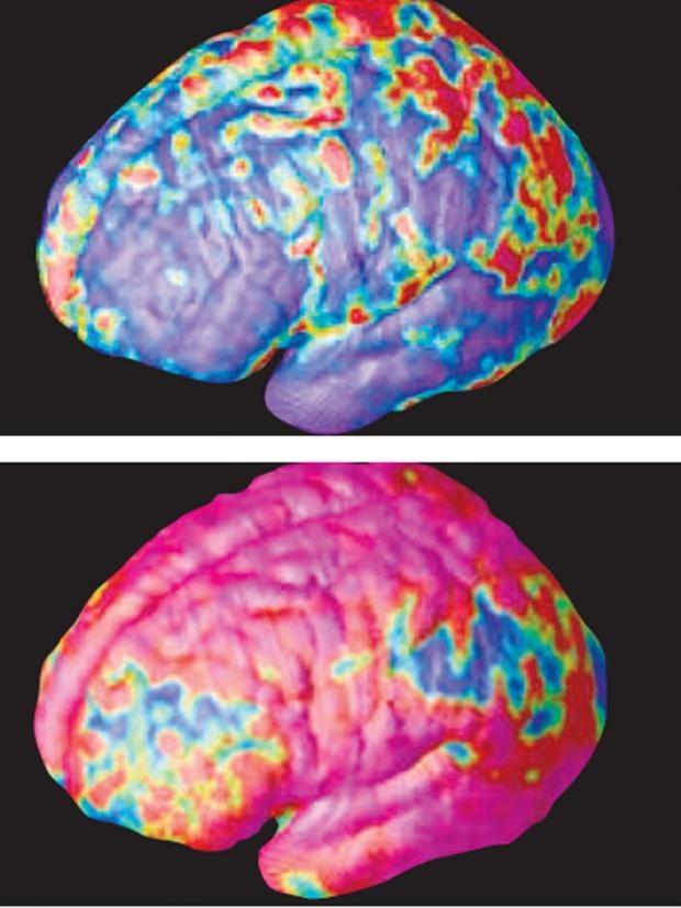 Pg-10-schizophrenia.jpg