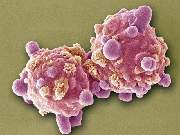 Pg-19-cancer.jpg
