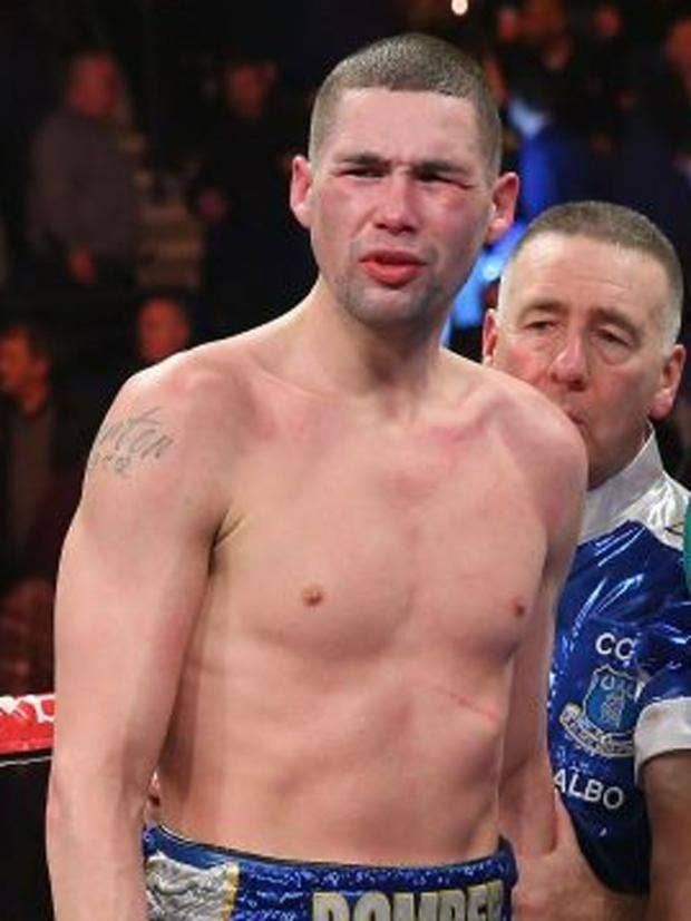 tony-bellew-boxing.jpg