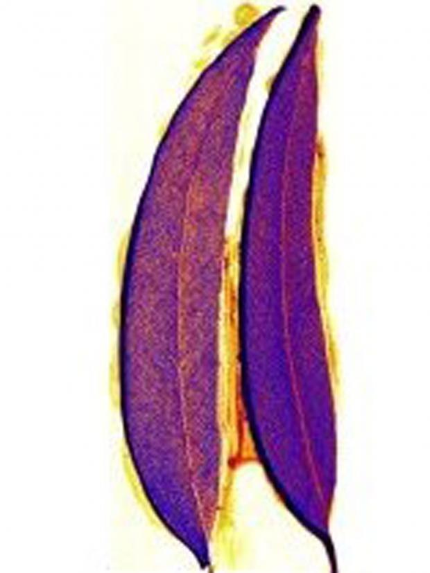 gum-leaves-showing-calcium-.jpg