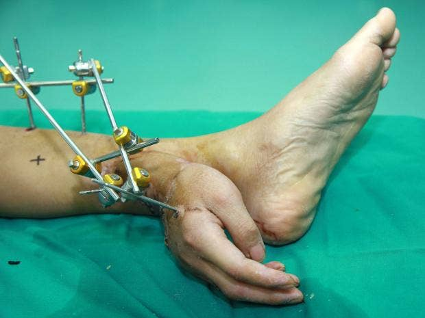 severed-hand-ankle-china2.jpg