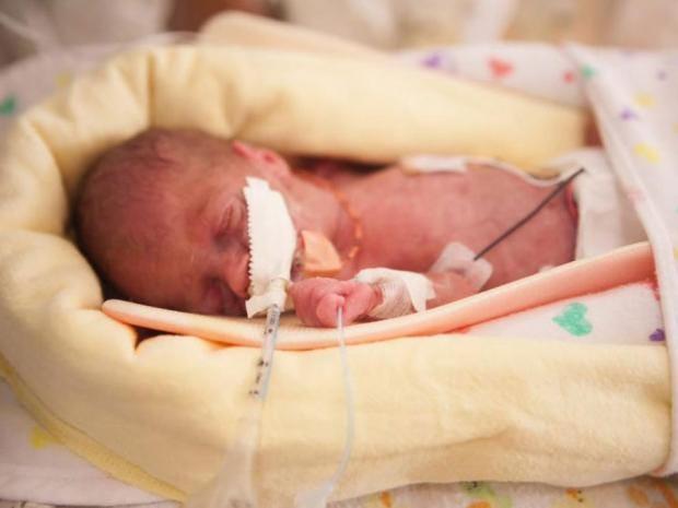 Premature-baby.jpg