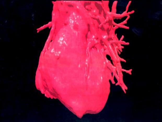 15-Human-Heart-Get.jpg