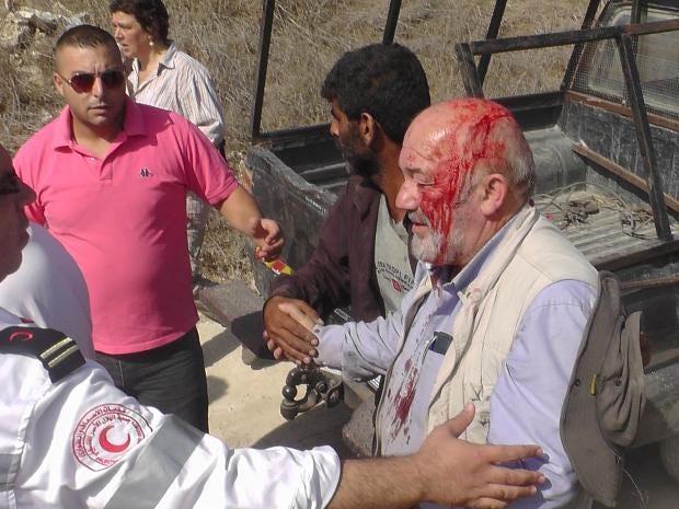 David Amos israeli settler stoning 3.jpg