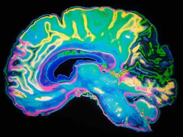 dementia-brain-alamy.jpg
