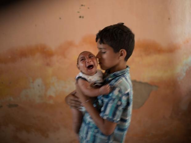 zika-virus-microcephaly-brazil.jpg