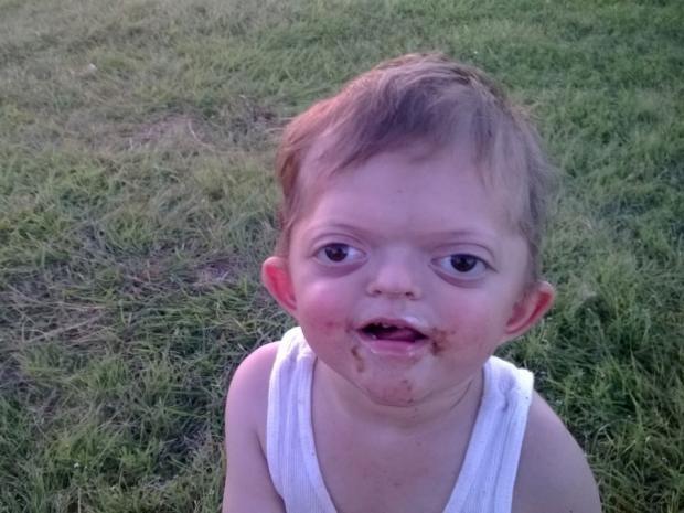 jameson-pfeiffer-syndrome.jpg
