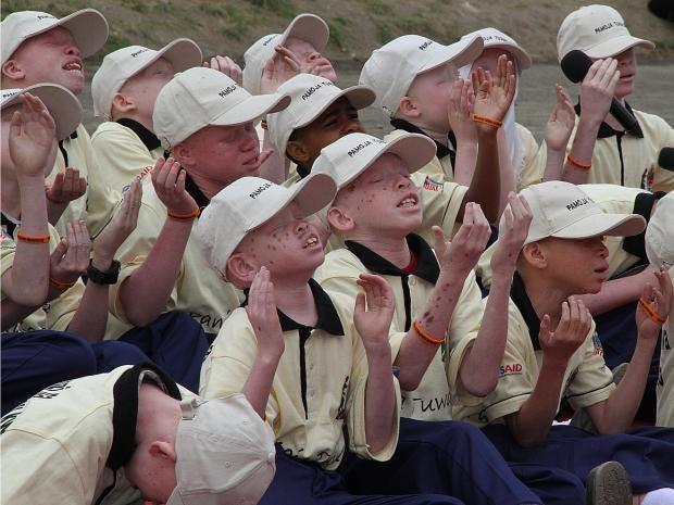 Albino-children-in-Tanzania.jpg