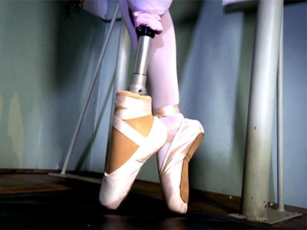 pg-24-ballet-amputee-1-eptv.jpg