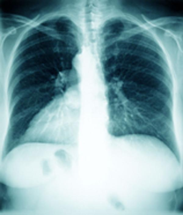 TB is a bacterial infection that mostly affects the lungs; there are about 8,000 cases a year