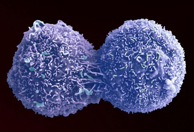 An enhanced image of a lung cancer cell in the act of dividing