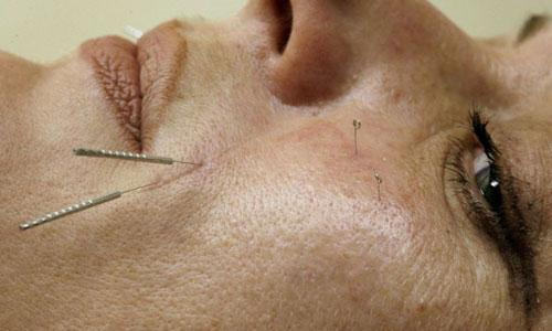 Acupuncturists would be regulated by the Health Professions Council under the new proposals