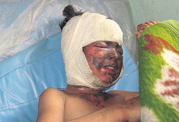 A girl injured in the Farah air strike