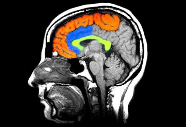A colour enhanced MRI image of the brain shows one of the theories into what may be the chemical basis for Schizophrenia. Researchers have found reduced receptors for dopamine in the brain (areas colourized)