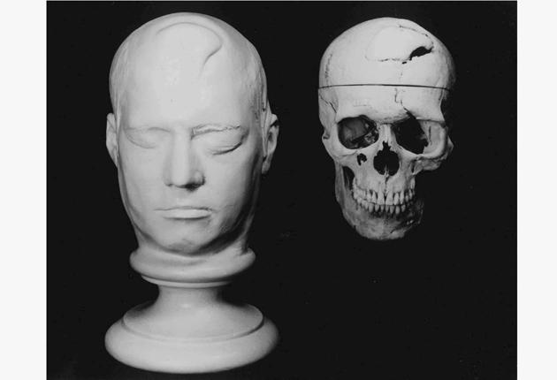 Gage's skull, and an artist's impression of the scarring to  his head
