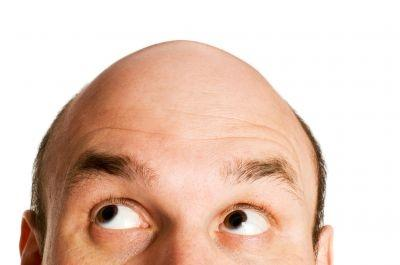 Men taking Propecia and Proscar for hair loss are reporting a host of problems in the bedroom, according to a new study.