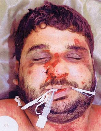 Iraqi hotel receptionist Baha Mousa, who was allegedly beaten to death by British soldiers in Basra in 2003