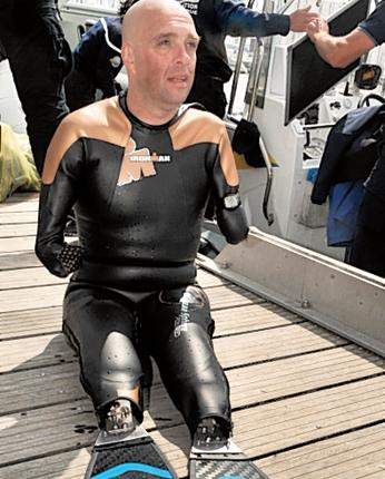 Philippe Croizon will have two artificial limbs fitted with flippers