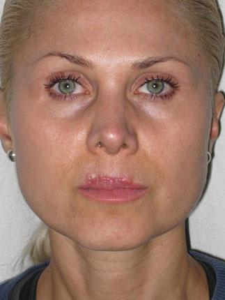 Lisa Stredwick has been in constant pain for more than two years because of lip injections