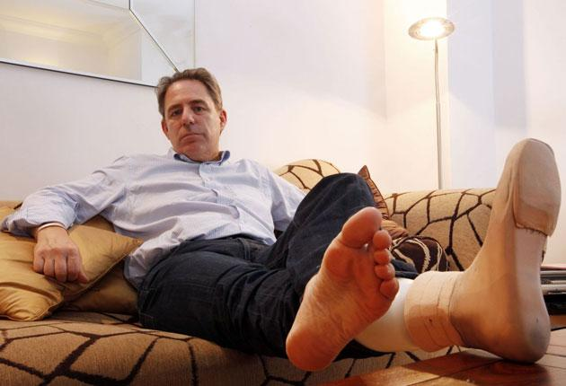 Still standing: losing a leg led to a 'strange sense of bereavement', says Graham Bound  who has always enjoyed an active life