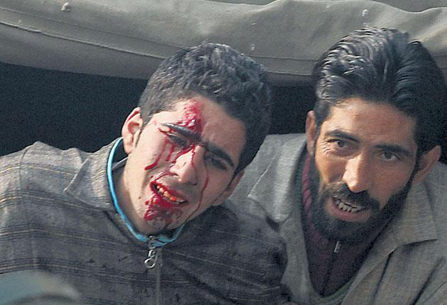 Injured Muslims arrested by Indian police in Kashmir after a religious procession earlier this week.