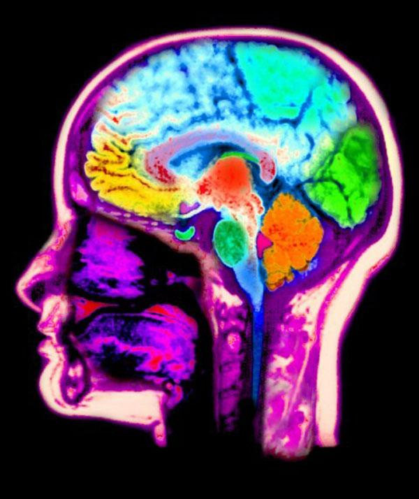 Mysteries of the brain: Magnetic resonance scan of a head