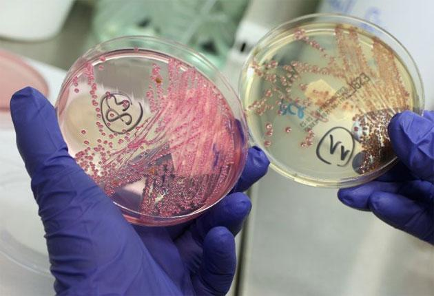 A lab technician holds a bacteria culture that shows an infection of E.coli, one of the bacteria strains that can become superresistant to antibiotics