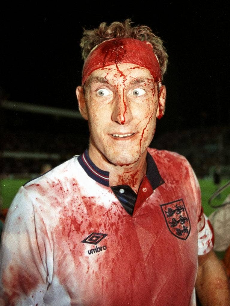Terry Butcher gives blood for the cause in 1989
