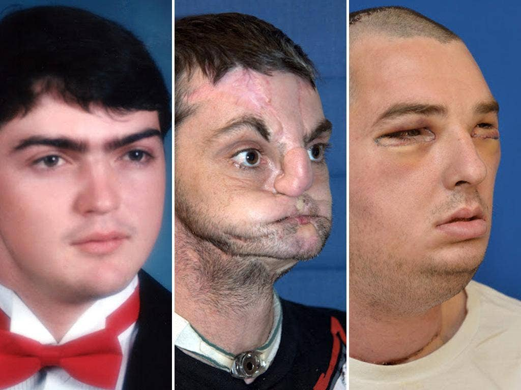 These photographs released by the University of Maryland Medical Center show images of full face transplant recipient 37-year-old Richard Lee Norris of Hillsville, Virginia