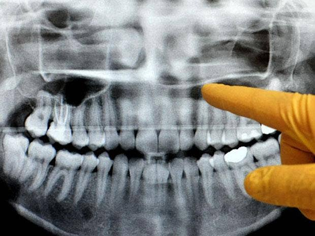 Frequent dental X-rays may significantly increase the risk of non-malignant brain tumours