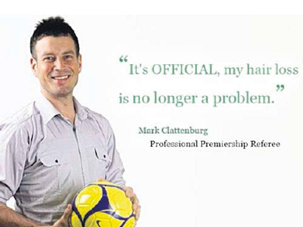 Mark Clattenburg promoting the benefits of hair restoration