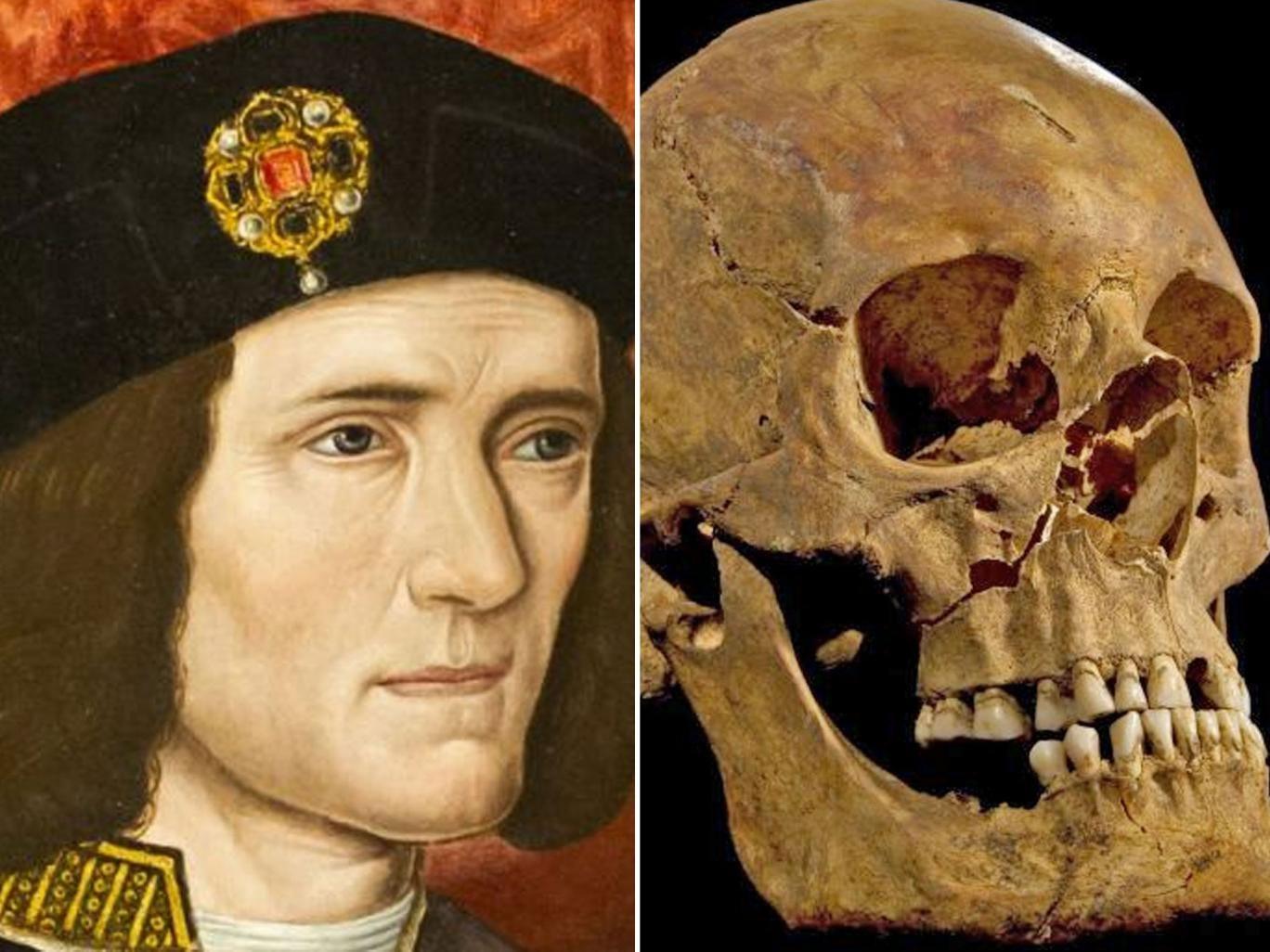 King Richard III, by an unknown 16th-century artist; King Richard's head