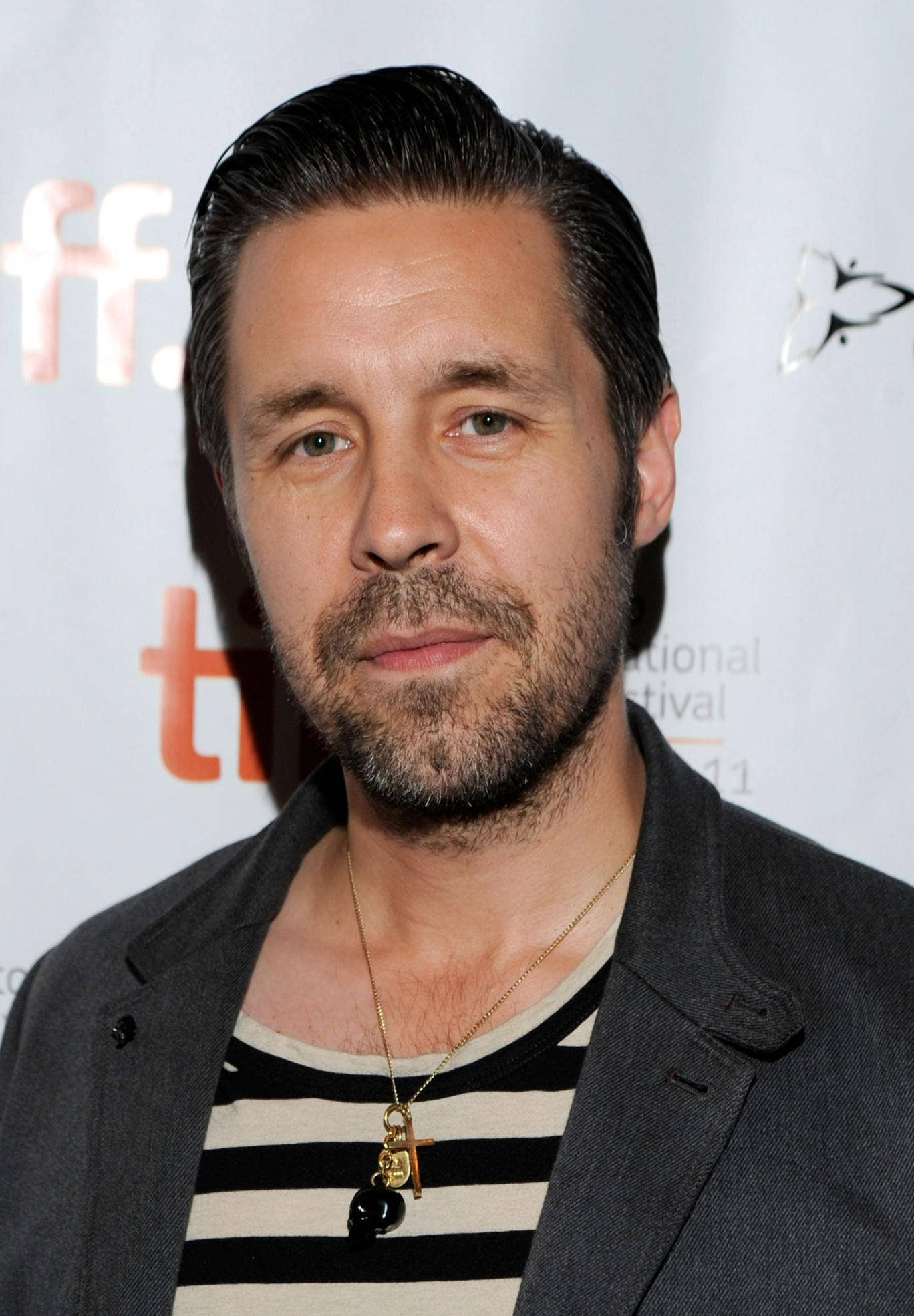 Actor Paddy Considine has been diagnosed with a rare condition that makes him sensitive to light