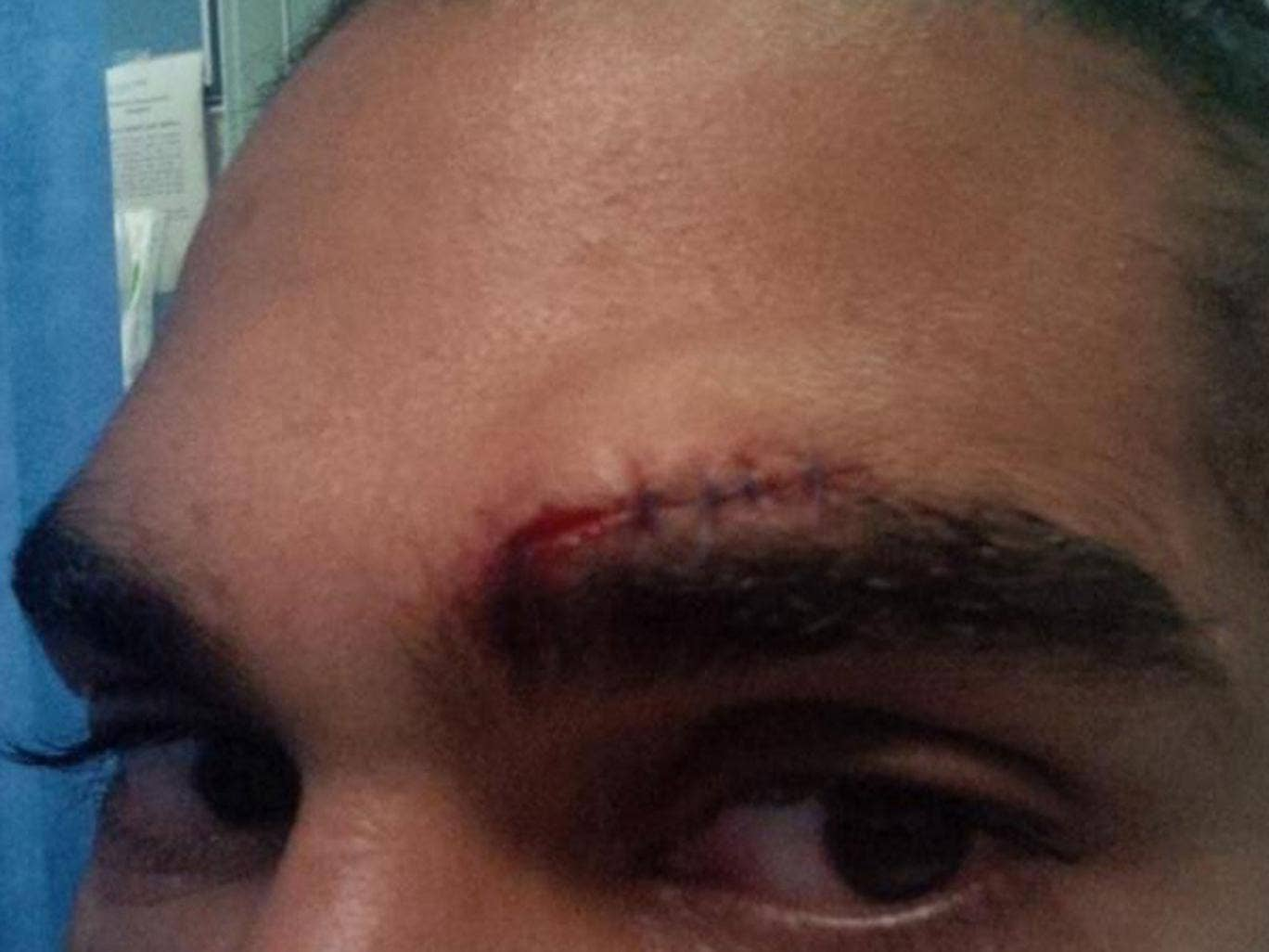 Sight for sore eyes: David Haye shows off his stitches yesterday