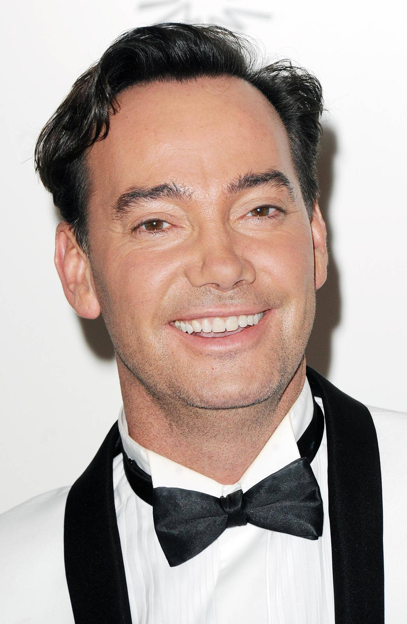 Criag Revel Horwood has announced he will undergo hip replacement surgery