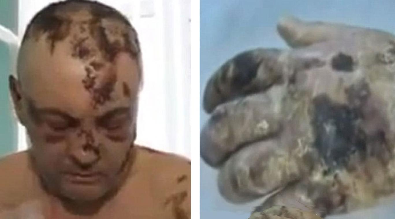 Has krokodil the horrific street drug that rots the flesh of addicts