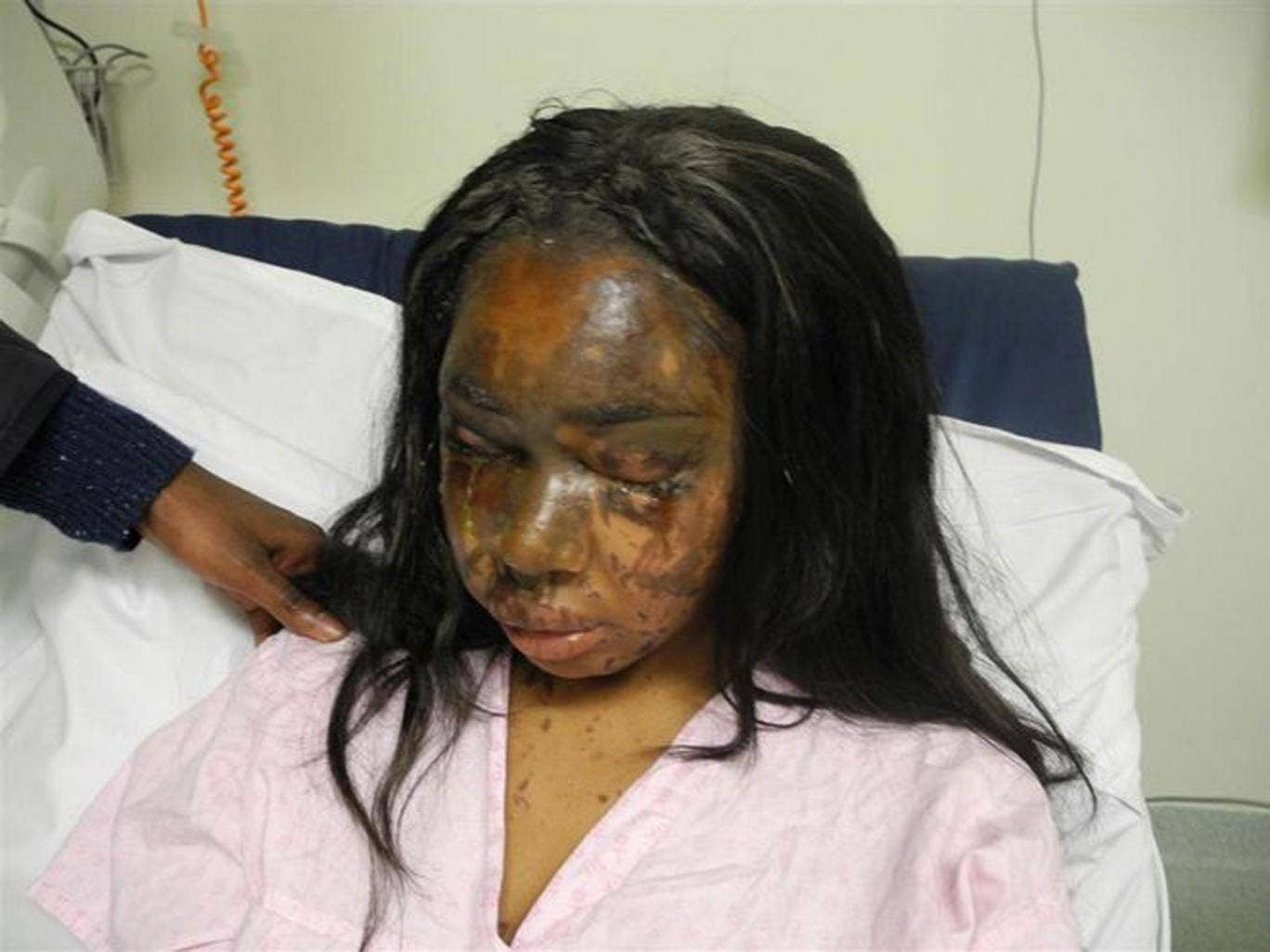 Naomi Oni after she acid thrown in her face by Mary Konye