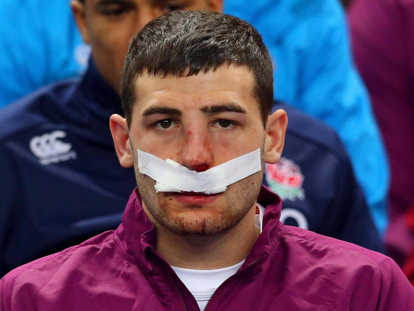 England wing Jonny May could miss the Calcutta Cup clash with Scotland due to a broken nose he suffered in the defeat to France